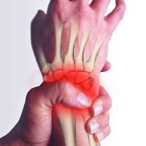 Growth Hormone - Carpal Tunnel Syndrome and Pituitary Tumour